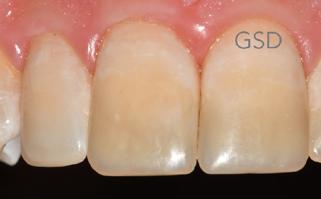 After - dentazure