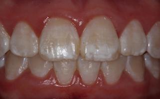 Before - dentazuredentazure